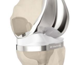 Arthrose im Kniegelenk – Gelenkersatz individuell nach Maß  mit der MyKnee Methode